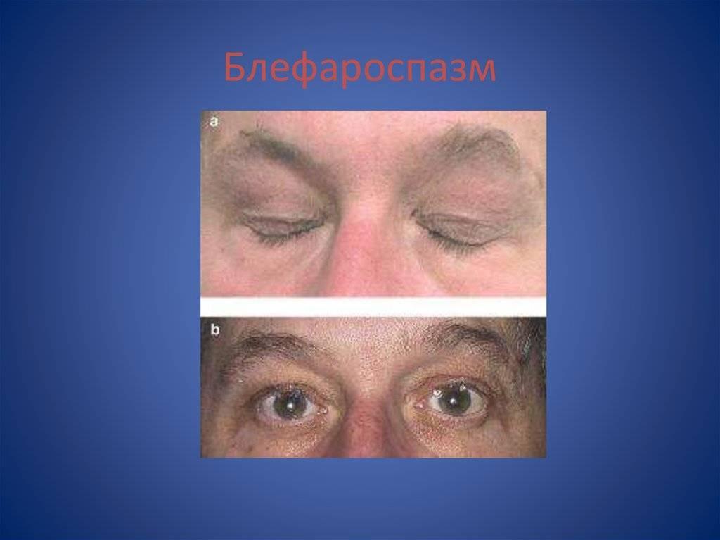 Блефароспазм: лечение, причины, симптомы