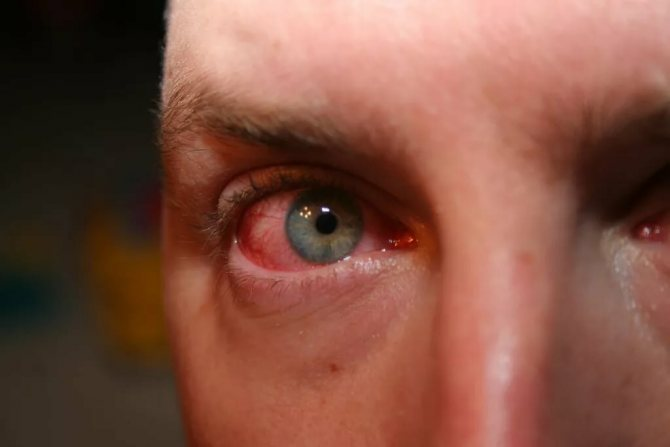 Может ли линза закатиться за глазное яблоко: что делать, если застряла и осталась, как достать, вытащить ее из-под верхнего века