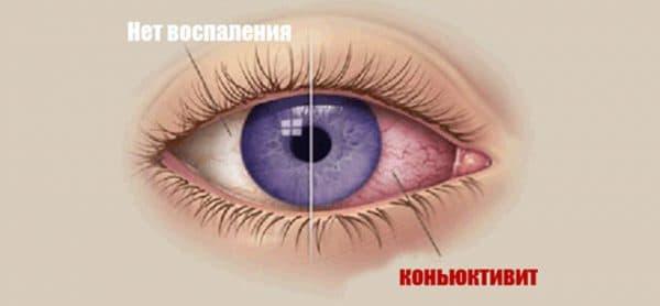 Светобоязнь глаз: причины и лечение, проявление фотофобии у детей и профилактические действия - популярные болезни