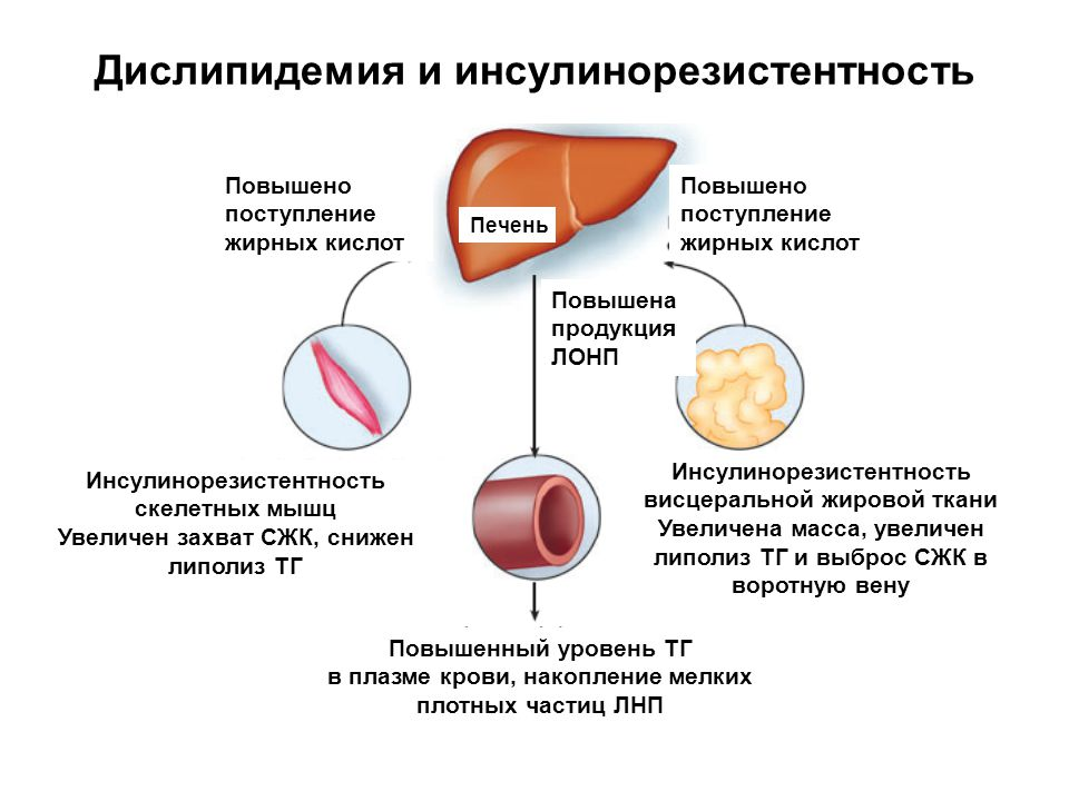 Пресбиопия: что это такое и как лечить | пища это лекарство