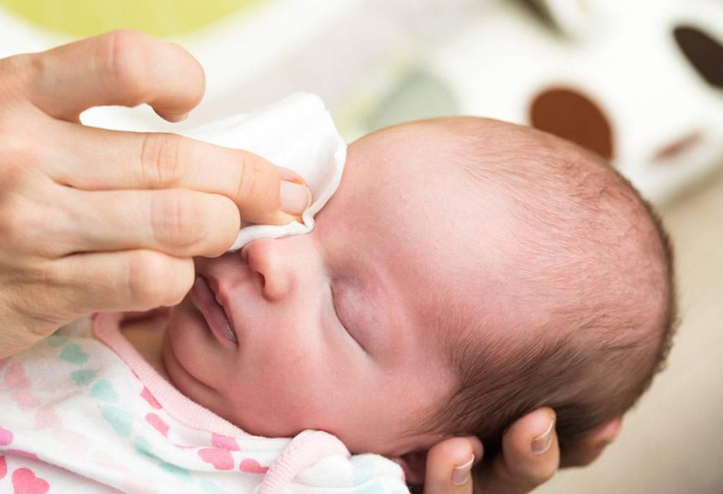 Почему гноится глаз у новорожденного и чем лечить? | компетентно о здоровье на ilive