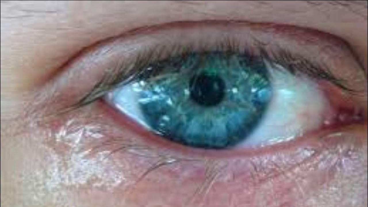 Что делать если закисает глаз. глаза закисают у взрослого