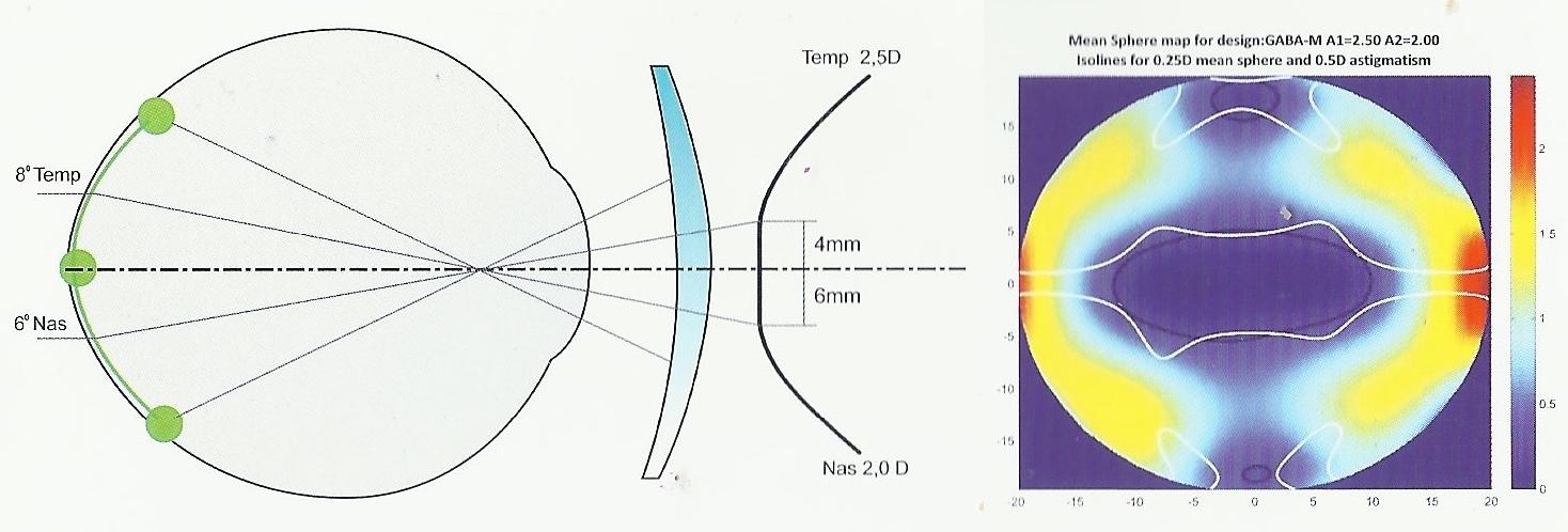 Перифокальные линзы: для детей для остановки близорукости, отзыв, перифокалы для очков, perifocal что это такое, очковые однофокальные