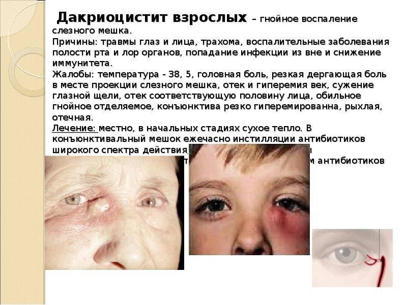 Воспаление слёзного мешка: симптомы, лечение oculistic.ru воспаление слёзного мешка: симптомы, лечение