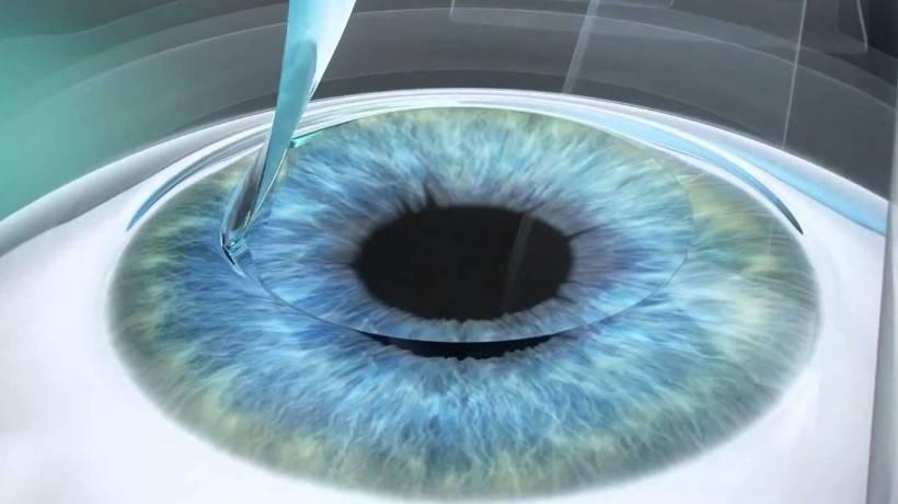 Что выбрать для восстановления зрения: relex smile или femto lasik?