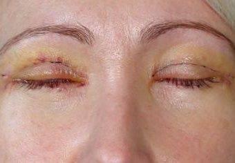 Реабилитация после блефаропластики верхних и нижних век: период восстановления по дням и уход, послеоперационные фото, а также чем мазать глаза и как долго заживают?