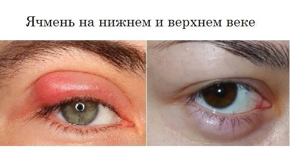 Как быстро избавиться от ячменя на глазу