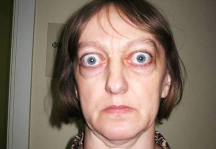 Экзофтальм (выпученные глаза): что это, причины, лечение