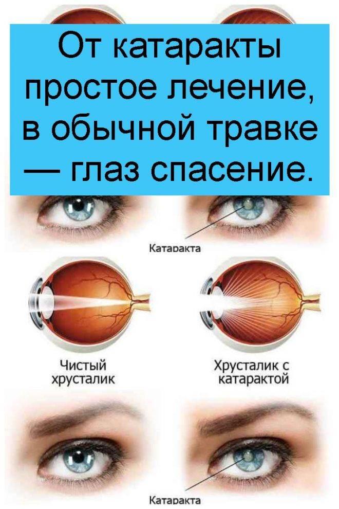 Как лечить катаракту в домашних условиях?
