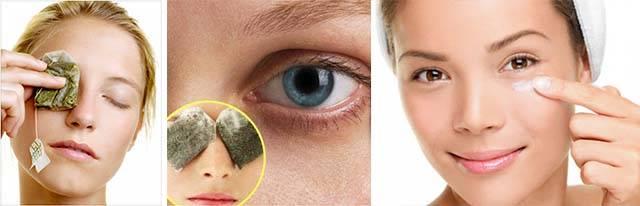 Лечение темных кругов под глазами народными методами – 10 советов