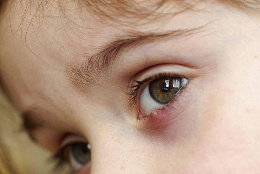 Халязион верхнего века у ребенка: лечение и причины