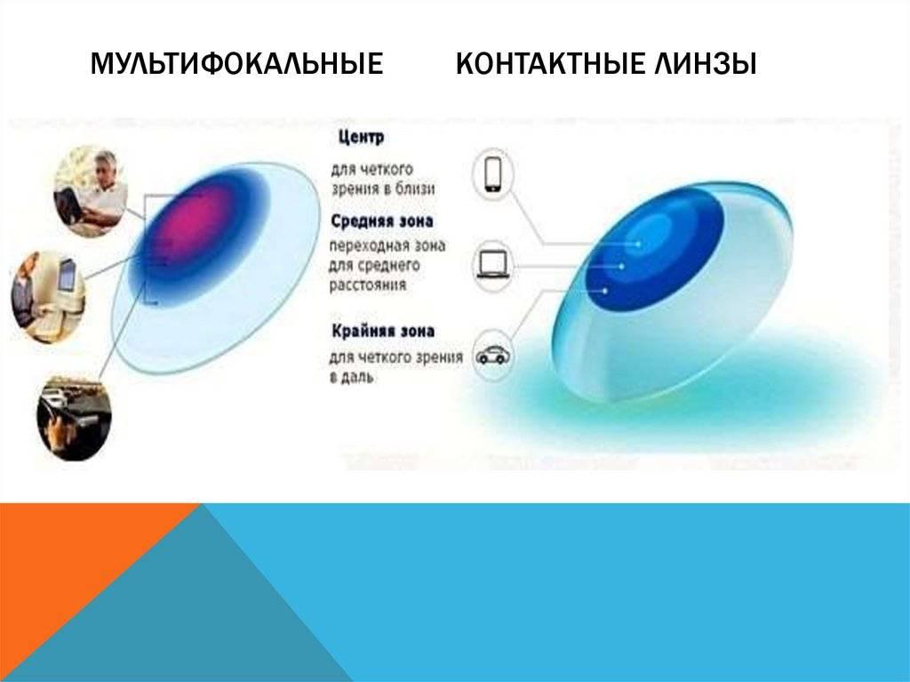 Мультифокальные контактные линзы - что это, подбор