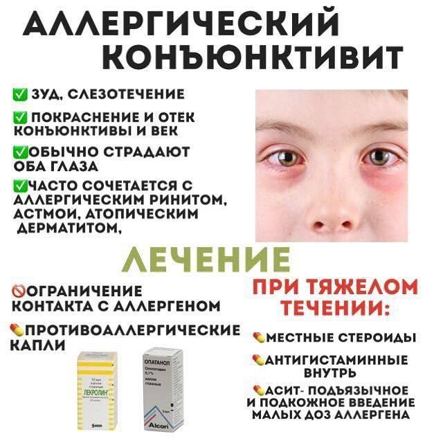 Вирусный конъюнктивит у детей: лечение и симптомы, капли и другие препараты