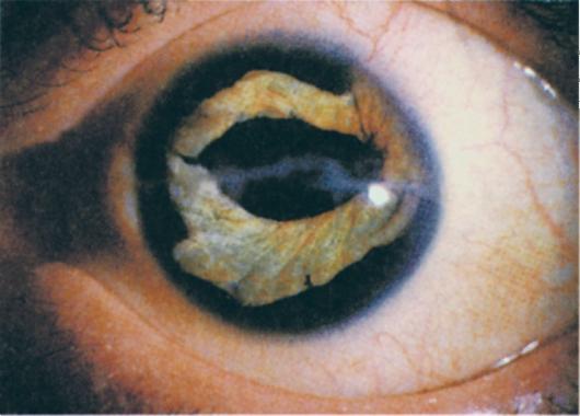 Колобома глаза – врожденная колобома радужки глаза у новорожденных