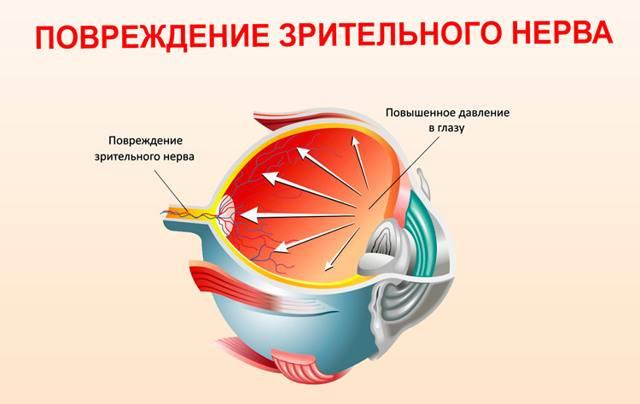 Как снизить глазное давление в домашних условиях быстро без лекарств