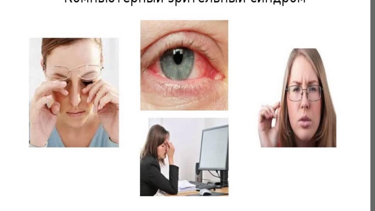 Зрительный компьютерный синдром - симптомы и методы лечения