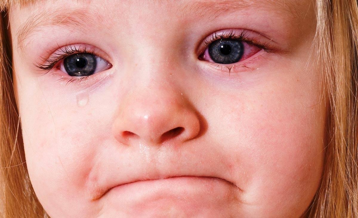 Температура при конъюнктивите у детей: бывает ли и что делать с ребенком, лечение