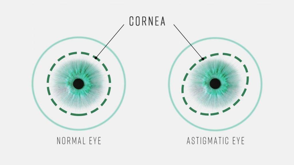 Тест на астигматизм в домашних условиях. таблица проверки зрения