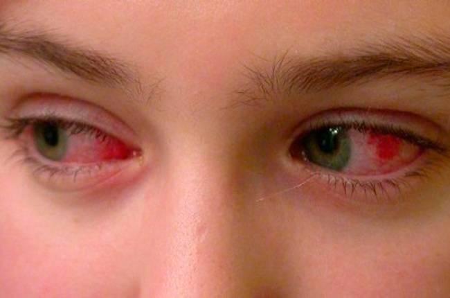 Выделения из глаз у взрослого человека и ребенка (белые, желтые, зеленые, коричневые, гнойные, слизистые), почему отделяемое скапливается в уголках, лечение