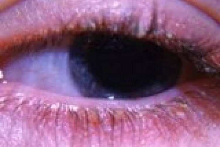 Грибковые заболевания глаз - фото, лечение, симптомы, причины