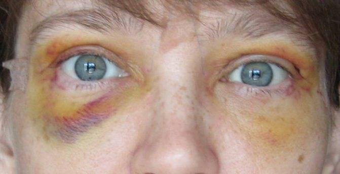 Глаз не видит после травмы | ocularhelp