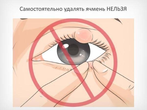 У меня лопнул ячмень на глазу, что делать в первую очередь?
