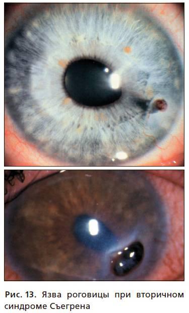 Синдром фукса вторичная глаукома - вылечимглаукому
