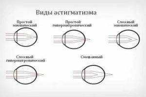 Как вовремя распознать гиперметропический астигматизм у детей: причины и симптомы болезни