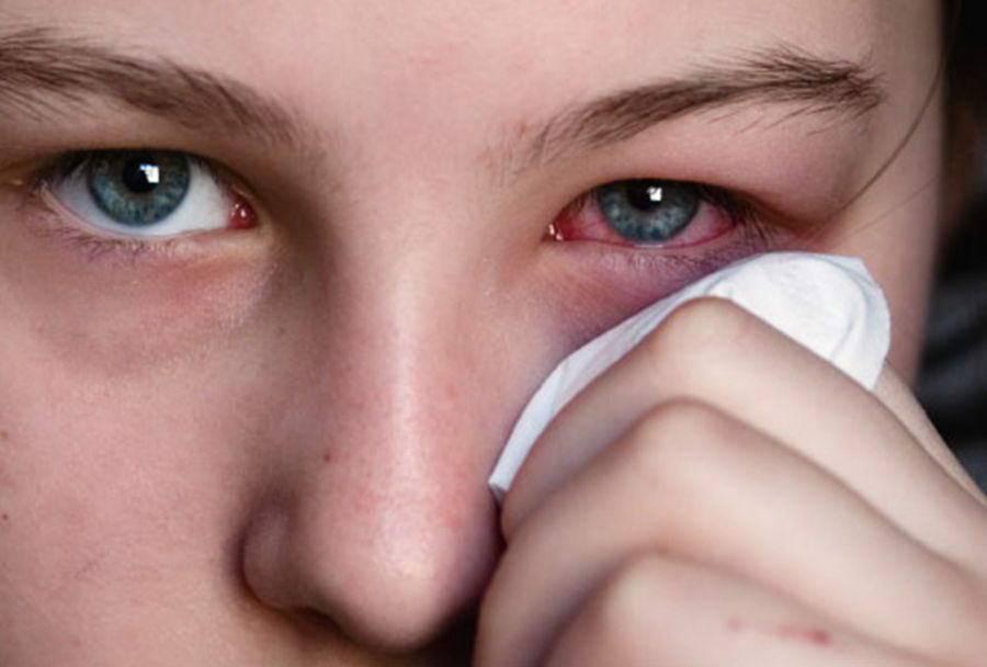 Почему при простуде слезятся глаза и что при этом делать для лечения?