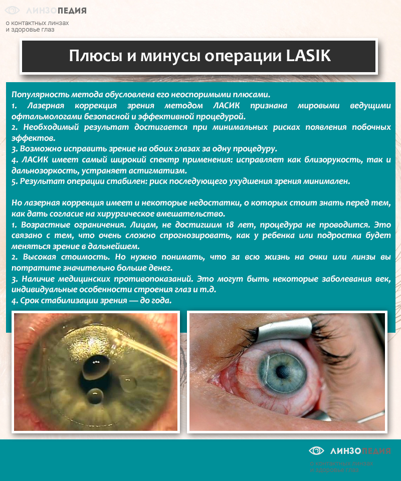 Фрк (фоторефракционная кератэктомия): суть метода, проведение, реабилитация