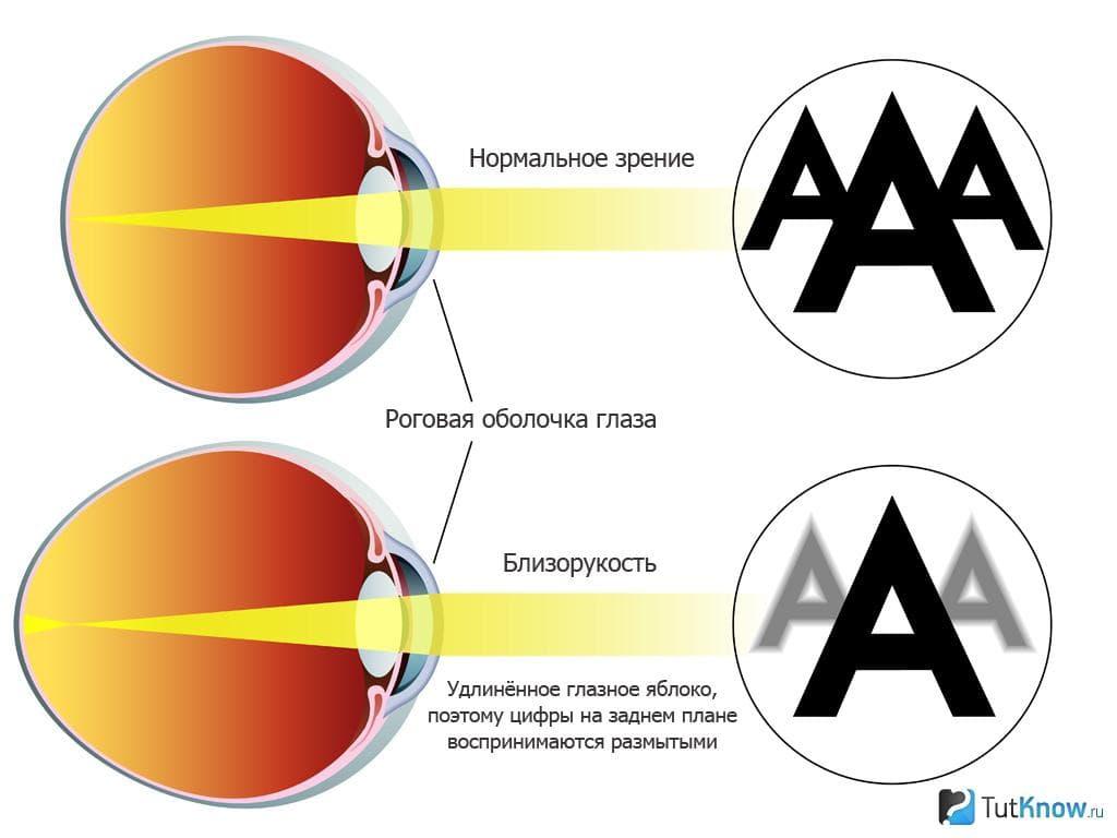 Можно ли служить в армии с астигматизмом - медицинский справочник medana-st.ru