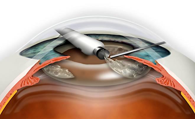Замена искусственного хрусталика - вопрос офтальмологу - 03 онлайн