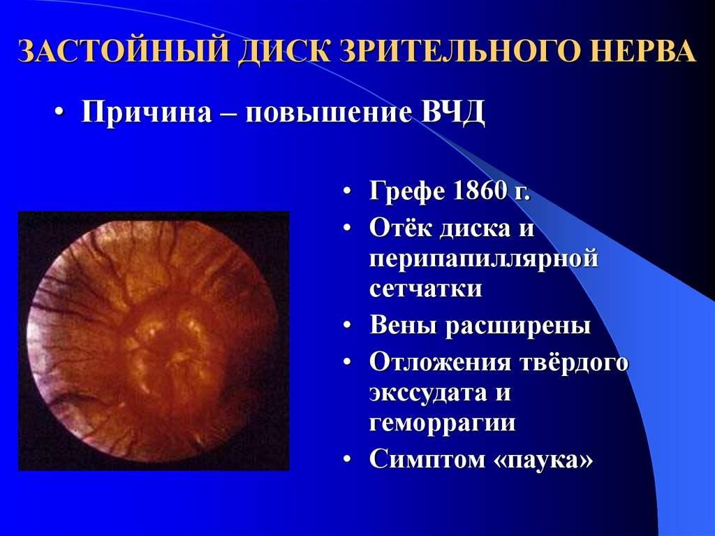Застойный диск зрительного нерва: симптомы, лечение, причины