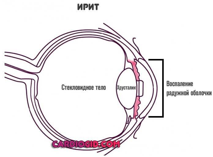 Ирит и иридоциклит