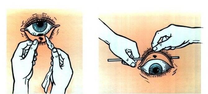 Сперма попала в глаза – не ослепну ли я и что делать