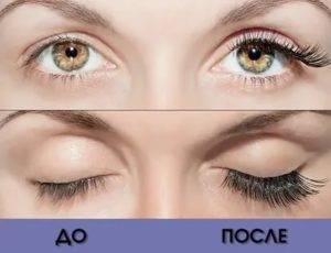 Можно ли наращивать ресницы после коррекции зрения - медицинский справочник medana-st.ru