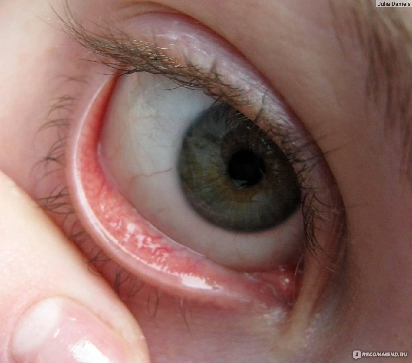 Почему в контактных линзах мутно, линзы мутнеют на глазах - что делать?