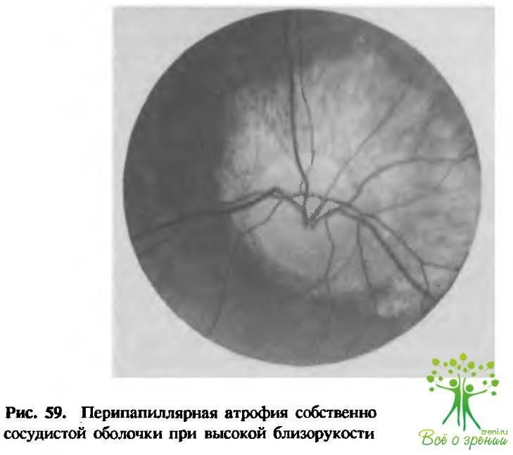 Что такое миопический конус и стафилома