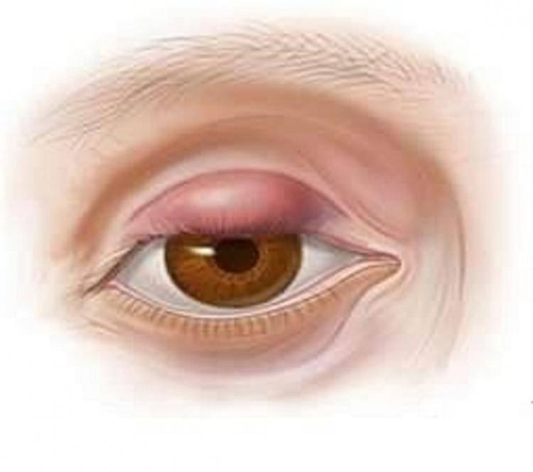 Халязион на глазу: лечение, причины, симптомы, удаление образования, терапия без операции, что это (фото), диагностика, профилатика