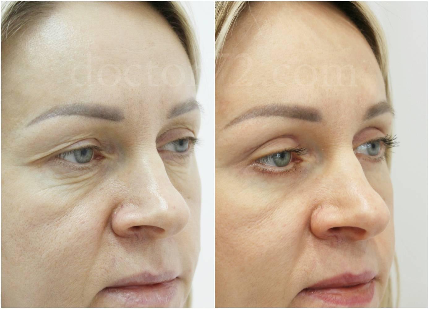 Убрать грыжи под глазами без операции, как избавиться от мешков