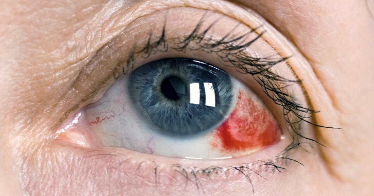 Офтальмия: описание болезни, симптомы и лечение