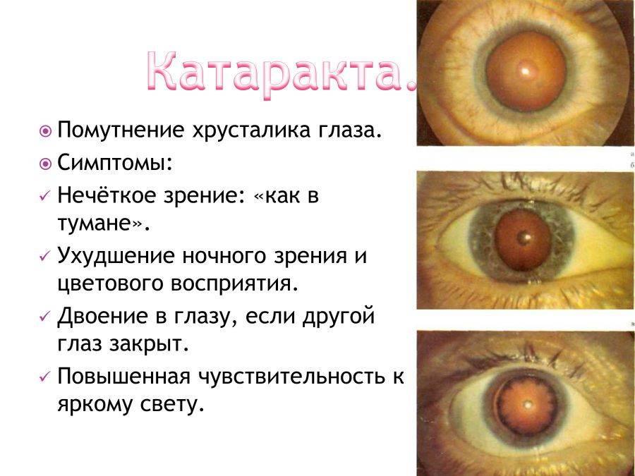 Катаракта. симптомы, причины, факторы риска, эффективное лечение и профилактика болезни. :: polismed.com