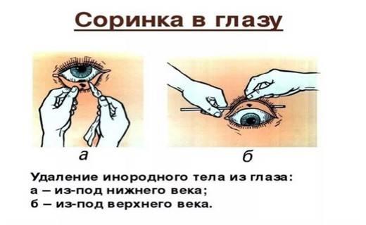 Осколок в глазу от болгарки. как вытащить стружку из глаза в домашних условиях? что делать если в глаз попала окалина