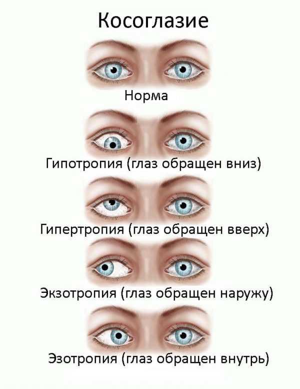 Почему ухудшается зрение у подростков
