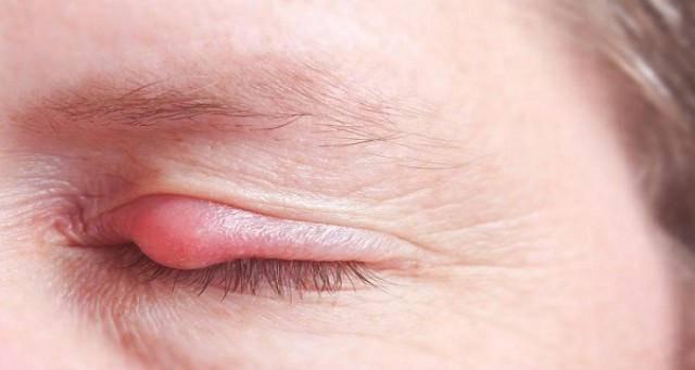 Левосин мазь от ячменя на глазу