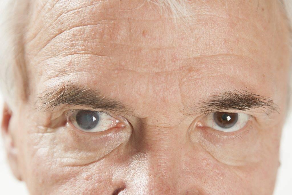 Слезотечение у пожилых людей — причины, лечение