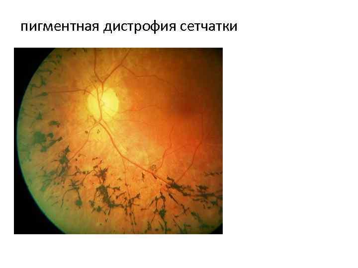 Решетчатая дистрофия сетчатки: влияние на око и причины появления — глаза эксперт