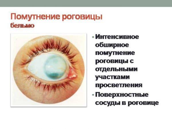 Помутнение роговицы глаза у человека: причины, лечение oculistic.ru помутнение роговицы глаза у человека: причины, лечение