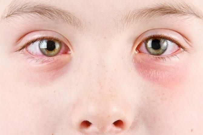 Когда глаза чешутся и слезятся: что делать? какие капли и рецепты народной медицины выбрать