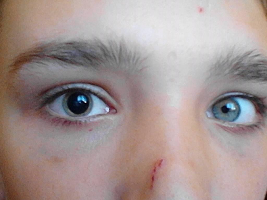 Зрачок в одном глазе больше чем в другом - для врачей